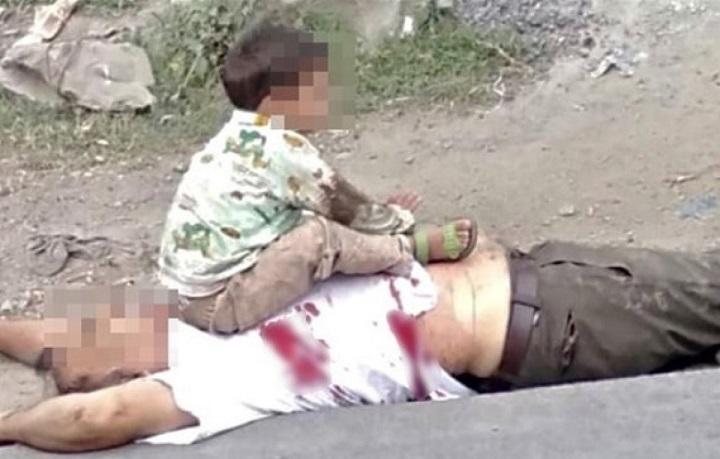 Keşmir'de, 3 yaşındaki çocuğun fotoğrafı infial yarattı